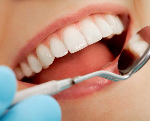 Eine saubere Zahnreihe, Dr. Fischer, Karlsruhe